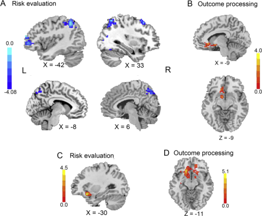 Group differences in fMRI findings using parametric (panel A and B) and categorical analysis (panel C and D). Group differences of sensitivity to experienced risk under loss conditions (A) and experienced reward (B) are displayed. Group differences of participants' responses to risky versus safe for potential losses (C) and to win versus loss for potential gains (D) are displayed. The color bars reflect t values. The 2D activation maps are overlaid on a T1 image using DPABI. (voxel-level P < 0.005 and cluster-level of P < 0.05, whole-brain corrected). (For interpretation of the references to color in this figure legend, the reader is referred to the web version of this article.)