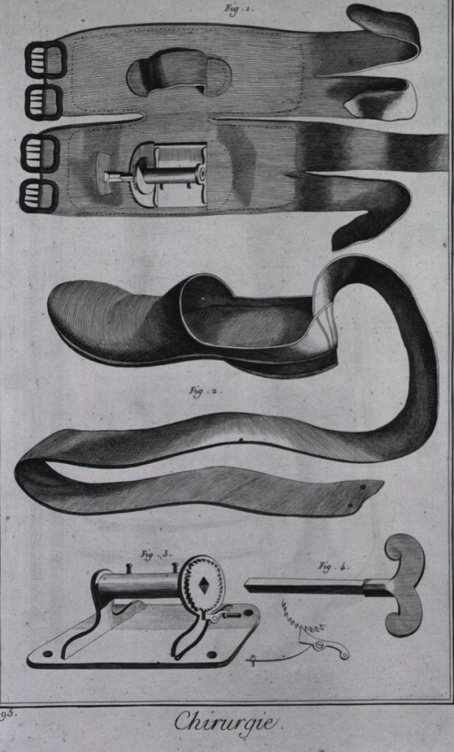 <p>Equipment to reunite the achilles tendon includes a knee cap brace and a slipper, a winch for the slipper, and a key to crank the winch.</p>