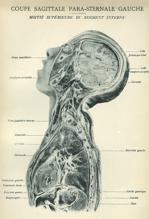 <p>Image of sagittal plane view of left side of human body showing segments of the head, neck, and thorax, including sinus maxillaire, apophyse coronoide, veine jugulaire interne, clavicule, 2me cote, pericarde, ventricule gauche, ventricule droit, foie (lobe gauche), diaphragme, lobe fronto-parietal, lobe temporo-occipital, cervelet, interlobe gauche, cavite gastrique, cardia, rate. Issued in seven installments by the flamboyant Parisian surgeon Eugene-Louis Doyen (1859-1916), this atlas of 279 &quot;heliotyped&quot; photographic plates of cross-sectioned bodies was a radical departure from past practice. Atlas d'anatomie topographique.</p>
