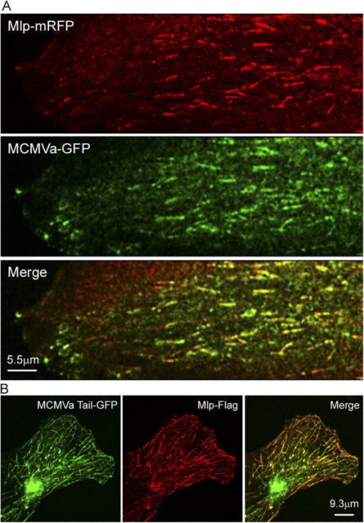 Myosin Va tracks the microtubule plus end. (A) A GFP-tagged version of the melanocyte-spliced isoform of myosin Va (MCMVa-GFP) plus end tracks together with Mlp-mRFP throughout the cell (Video 8, available at http://www.jcb.org/cgi/content/full/jcb.200503028/DC1). (B) In a fixed cell, the tail domain of this isoform (MCMVaTail-GFP) targets to microtubule plus ends together with FLAG-tagged Mlp (Mlp-FLAG; visualized by staining with α-FLAG antibody). The omission of Mlp-FLAG abrogated the interaction of MCMVaTail-GFP with microtubules (not depicted).
