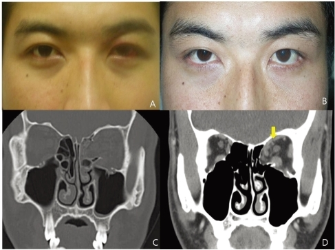 Case 1: (A) At his visit he showed mild swelling and bruising in the left eyelid, but no retraction was noted. (B) Left upper eyelid retraction developed one month after blow-out fracture repair. (C) CT scan showing a large left medial and inferior wall fracture and soft tissue incarceration. (D) One month after blow-out fracture repair, this CT scan revealed adhesion between the superior rectus and superior oblique muscles (arrow).
