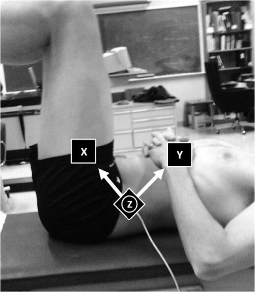 Motion capture. The Flock of Birds Motion Capture™ sensor was placed on the antero-superior portion of the left lateral iliac crest. Note that the z-axis is positioned perpendicular to the sensor. This sensor records motion with respect to a fixed global reference and not an anatomical reference.