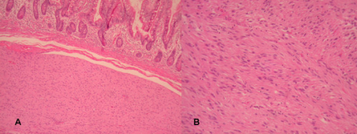 A) Invasion of submucosa of small intestine from GIST (HE×200). B) Histologically, the GIST was composed of sheets of spindle cell with moderate to slight interstitial collagen (HE×200).