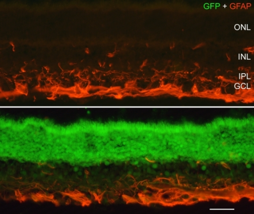 Investigation of GFAP expression in the injected retina. The expression of GFAP was similar between transduced (lower panel) and non-transduced (upper panel) regions of scAAV2/5-injected eyes. The similarity in GFAP immunoreactivity between the injected and non-injected areas indicates that expression of GFP is not inducing glial cell reactivity. Scale bar equals 25 µm.