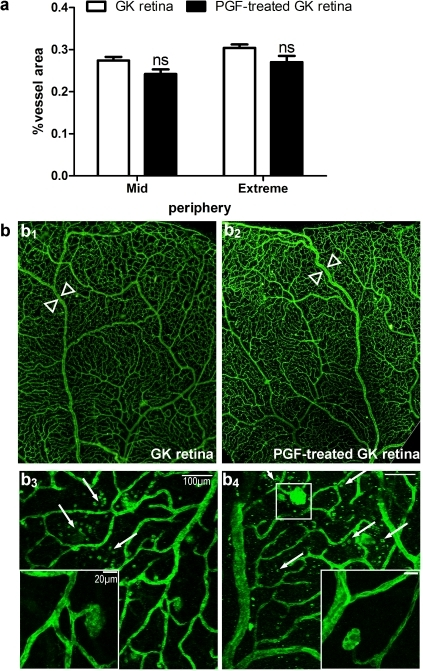 Analysis of flat-mounted diabetic retinas labeled with FITC-conjugated lectin from Bandeira simplicifolia, one month after ET.(a) Quantitative analysis of the retinal vasculature from control and PGF ET-treated diabetic rat eyes. (b) Microscopy of flat-mounted control (b1, b3) and PGF ET-treated (b2, b4) diabetic retinas. (b1–b2) Optic microscopy on mosaics made with microscopic images at low magnification (x4) showing no evident difference of the retinal vascularization between control (b1) and pVAX-2-rPGF-1 ET-treated eyes (b2), except a weak retinal venous dilation in treated retinas (between arrowheads). (b3, b4) Confocal microscopy showing lectin-labeled cell infiltration (arrow) and micro-aneurysmal-like structures observed in both group (insets).