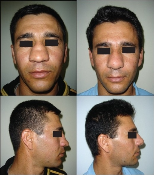 Preoperative anterior view of the patient with saddle nose deformity (above, and below; left). Postoperative 26 months later (above, and below; right).