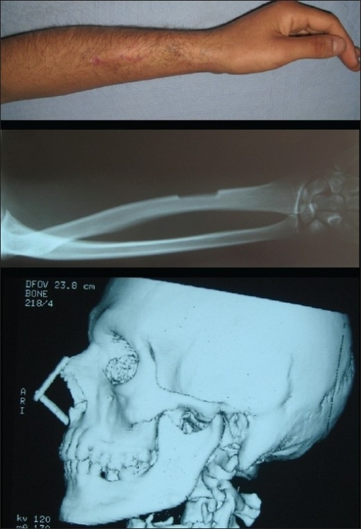 Late view of radial bone graft donor site (above), radiological appearance of radial bone graft donor site (center), three-dimensional CT imaging of L-strut bone graft (below).