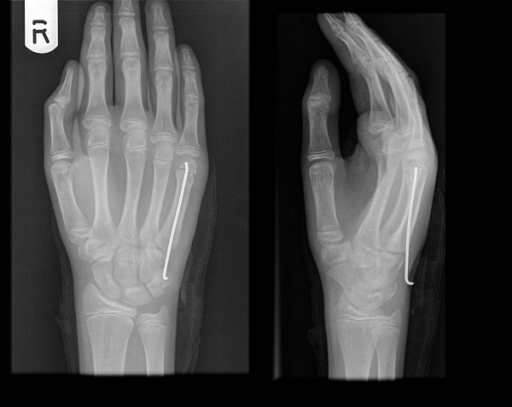 Metacarpal neck fracture treated with pre-bent K wire. | Open-i
