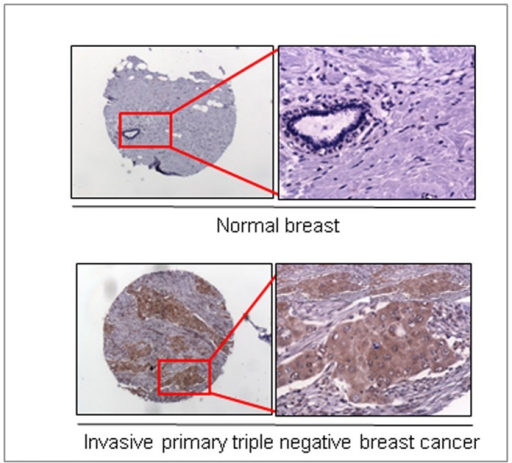 Differential over-expression of MUC4 mucin in TNBC tissues compared with normal breast tissues.Immunohistological analyses were performed using the anti-MUC4 mouse monoclonal antibody (2214, generated in our laboratory, against a sequence close to the N-terminus of human MUC4) on tumor microarrays (BR1503 and BR10010) containing normal breast and invasive TNBC tissues and observed under a Nikon light microscope. MUC4 expression in invasive primary (n = 35) TNBC tissues were compared with normal breast tissue (n = 6) in a set of arrays. High immune-reactivity for MUC4 was detected in invasive TNBC tissues, but not in normal breast tissues. The image presented was taken at 4× magnification, and the higher magnification images (marked with a red box) were taken at 10× magnification.