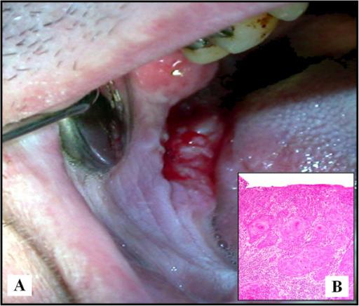 A Clinical Aspect Of A Scc Of The Retromolar Trigone Open I