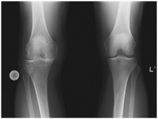 Rosenberg view radiograph of knees. Note the right knee with severe osteoarthritis characterized by osteophytes, subchondral sclerosis and cysts, joint space narrowing, and effusion.