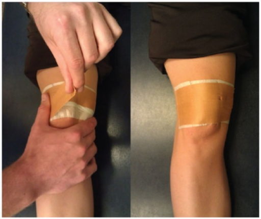 135 in addition Mi besides Detailedresult php in addition Fat Pad Infrapatellar Physioadvisor furthermore Quadriceps. on taping for patellar dislocation