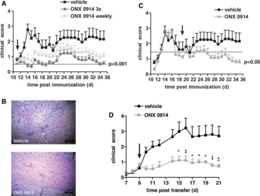 ONX 0914 ameliorates PLP139–151-induced EAE.SJL/J mice were immunized with PLP139–151 and were monitored daily for clinical symptoms of EAE. From day 11 on (indicated by an arrow), mice were treated with 10 mg/kg ONX 0914 three times a week (indicated 3×), 10 mg/kg ONX 0914 once a week (indicated weekly), or vehicle. Data, presented as the mean clinical score s.e.m. ( n = 10 per group), are from one experiment of three performed with similar results. *** P < 0.001 by two-way ANOVA followed by Bonferroni post-hoc comparison at the end of study.Representative histological spinal cord sections of indicated mice. From day 11 on, mice were treated with10 mg/kg ONX 0914 three times a week. Mice were analyzed on day 14 post immunization.SJL/J mice were immunized with PLP139–151 and were monitored daily for clinical symptoms of EAE. From day 19 on (indicated by an arrow), mice were treated with 10 mg/kg ONX 0914 three times a week (indicated 3×), 10 mg/kg ONX 0914 once a week (indicated weekly), or vehicle. Data, presented as the mean clinical score s.e.m. ( n = 10 per group), are from one experiment of three performed with similar results. *** P < 0.001 by two-way ANOVA followed by Bonferroni post-hoc comparison at the end of study.In vitro restimulated PLP139–151–reactive T cells were adoptively transferred into SJL/J mice. Mice were treated three times a week with 10 mg/kg ONX 0914 or vehicle beginning on day 9 and were monitored daily for clinical symptoms. Data are presented as mean clinical score s.e.m. ( n = 9–10 per group). * P < 0.05; ** P < 0.01; *** P < 0.001.