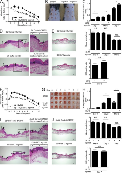 A synthetic BLT2 agonist accelerates wound healing and enhances re-epithelialization in C57BL/6J and db/db mice. DMSO vehicle or a synthetic BLT2 agonist (10 µM in Vaseline) was applied daily to the skin wounds of C57BL/6J (B6) mice (A–E) and db/db mice (F–J). (A and F) Wound closure rate in C57BL/6J (A, n = 3 mice per group) and db/db (F, n = 8–10 mice per group) mice. (B and G) Gross appearance of the wounds in C57BL/6J mice on day 6 (B, n = 3 mice per group) and db/db mice at the indicated days (G, n = 8–10 mice per group). Bar, 1 mm. (C and H) Morphometric analysis of wounded skin. Re-epithelialization (top), wound length (middle), and Ki67-positive keratinocyte proliferation (bottom; n = 5 mice per group, two sites per mouse) were evaluated in HE-stained tissue sections. (D and I) Representative HE-stained sections of the wounds at 3 d after skin punching. Arrows, wound margin; arrowheads, epithelial leading edge. Bars, 100 µm. (E and J) Representative Masson's trichrome–stained sections of the wounds (E, day 6; J, day 7; n = 5 mice per group). Bars, 100 µm. Data represent the mean ± SEM. **, P < 0.01; *, P < 0.05; N.S., not significant (A and F, two-way ANOVA; C and H, unpaired Student's t test). All the results are representative of at least two independent experiments.