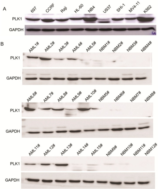 Expression of PLK1 is upregulated in AML cells and pediatric AML patients (A) Western blot analysis showing PLK1 protein expression in nine leukemia cell lines; (B) Western blot analysis showing PLK1 protein expression in 15 pediatric AML samples and 12 NBM samples; (C) Real-time PCR analysis of the PLK1 mRNA transcript levels in 105 pediatric AML samples and 30 NBM/ITP (normal bone marrow/idiopathic thrombocytopenic purpura) control samples; and (D) Kaplan-Meier survival analysis of 105 pediatric AML patients comparing high and low PLK1 expression (p = 0.002).