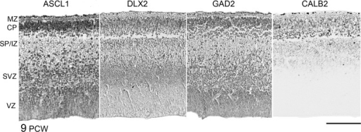 Laminar expression of GABAergic immunoreactivity at 9 PCW. ASCL1, DLX2, and GAD2 show similar patterns of immunoreactivity at 9 PCW, with a mosaic of cells exhibiting either strong, moderate, and weak/no expression throughout the layers of the cortical wall. They differed in that ASCL1 expression was generally more prominent in the VZ, whereas DLX2 was stronger in the SVZ. GAD2 immunoreactivity was observed in proliferative layers as well as in postmitotic cells. In the cortical plate (CP), most GABAergic markers showed more expression in cells closer to the outer boundary with the marginal zone. The exception was CALB2 immunoreactivity, which was most prominent in cells at the interface between the CP and the early subplate (SP/IZ). CALB2-positive fibrers were also seen extending into the intermediate zone (IZ), but no CALB2-positive cells were seen in the SVZ/VZ at this stage. Scale bar = 200 μm.
