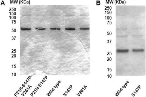 SDS-PAGE characterization of 15N-labeled N-terminal segments of nmMLCK1.(A) Five 15N-labeled 1-494aa proteins (ca. 3 μg each). (B) Two 15N-labeled 1-264aa proteins (ca. 3 μg each).