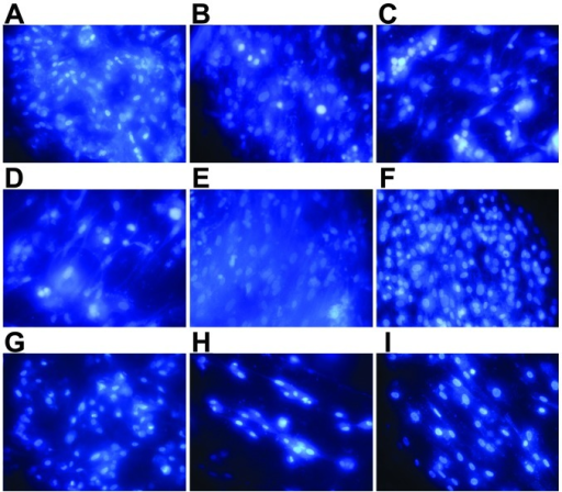 4′,6-Diamidino-2-phenylindole (DAPI) staining of chondrocytes (x400 magnification). Cells cultured for 3 days on (A) brushite (CaHPO4·2H2O)-co ated JDBM (C-JDBM), (B) Mg-Nd-Zn-Zr (JDBM), (C) AZ31, (D) WE43, (E) pure magnesium (Mg), and (F) TC4. Cells cultured for 1 day on (G) C-JDBM, (H) pure Mg, and (I) TC4. A few cells were already observed on the samples after 1 day of culture (G–I). After 3 days of culture, the number of cells on the discs increased (A–F). Among the cultures, a significantly greater number of adhered cells was observed on the surfaces of the C-JDBM and TC4 discs (A and F, respectively), whereas the least number of cells was observed on the WE43 disc (D).