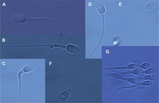 Grading of spermatozoa into four groups according to the presence or size of vacuoles. Grade I: normal form and no vacuoles (A). Grade II: normal form with less than or equal to two small vacuoles (B, C). Grade III: normal form with more than two small vacuoles or at least one large vacuole (D, E). Grade IV: large vacuole and abnormal head shapes or other abnormalities (F, G).