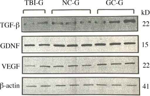 Western blot analysis was used to assess the expression levels of TGF-β, GDNF, VEGF and β-actin in the three groups. NC-G, TBI plus neuronal cells-transplanted group; GC-G, TBI plus glial cells-transplanted group; TBI-G, TBI only group; TGF. tumor growth factor.