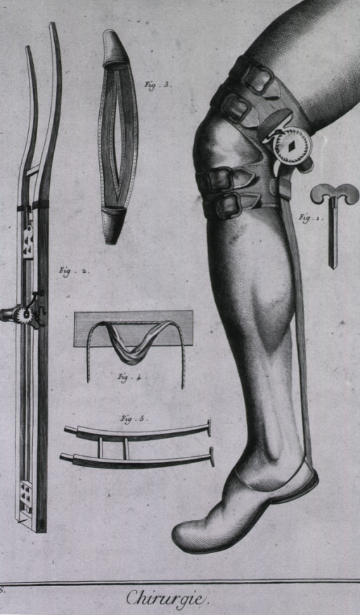 <p>In addition to the components of a device of Petit's for dislocations, there is an assembled slipper, knee brace, and winch.</p>