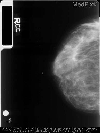 Infiltrating Ductal Carcinoma-Mammo CC view shows architectural distortion in the mid third of the breast at the fat-parenchymal interface in the outer half of the breast.