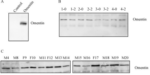 Specificity of the omentin antiserum and omentin in fasting plasma and plasma after glucose challenge. (A) In vitro translated omentin and a control protein were used to determine the specificity of the omentin antiserum. (B) Omentin was analyzed in the plasma of all probands and a representative result of the probands 1 to 4 after an overnight fast (0) and 2 h (2) after glucose uptake by immunoblot is shown. (C) Omentin in the plasma of women (F9, F10, F12, F17) and men (M4, M8, M11, M13, M14, M15, M18, M19, M20) was determined by immunoblot.