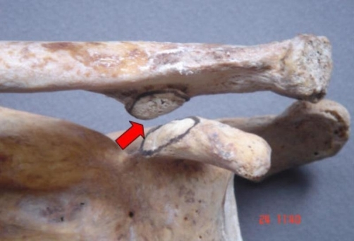The articulation facets as they articulated in the coracoclavicular joint (arrow).