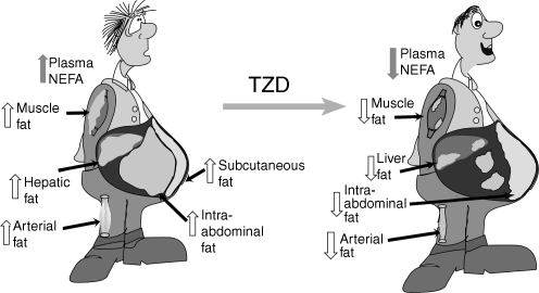 Fat topography in type 2 diabetes and effect of thiazolidine-diones (TZD) (see text for a detailed discussion)