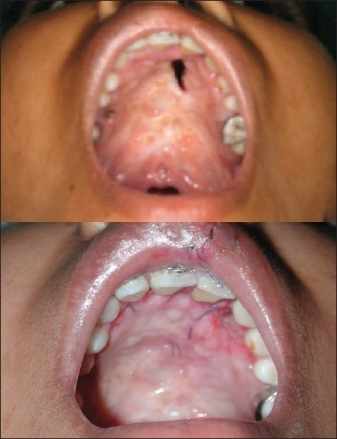 Fistula repair by alveolar extended palatoplasty