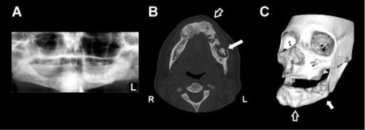 Figure 1 Mandibular Actinomyces Osteomyelitis Complicating Florid Cemento