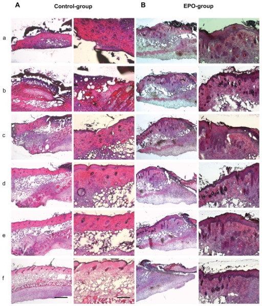 Representative hematoxylin and eosin stainings of scalded skin tissue samples from mice on day 7 after injury and continuous application of rhEPO or vehicle by subcutaneous injection. (A) Control group without EPO (vehicle only), mouse 1 (a–f); (B) EPO group, mouse 2 (a–f) on day 14; (C) control group, mouse 5 (a–f); (D) EPO group, mouse 8 (a–f). Magnification 40× or 100×, scale bar is 500 μm or 200 μm, respectively. In order to obtain a three-dimensional view of the wound area, each 100 μm thickness comparative slides were subjected to qualitative and quantitative evaluation. All evaluations were performed on hematoxylin and eosin routine stainings. The following histological parameters were examined and scored: wound closure in the form of assessment of remaining wound area and re-epithelialization (presence or absence of epithelial covering, degree of epithelial covering relative to number of epithelial cell layers as monolayer or multilayer designed, presence of conical structures). All criteria used for histological scoring of wound healing are summarized in Table 1. In order to render the observations comparable, sections every 100–200 μm in depth were evaluated at low-power (40×) and high-power magnification (100×).Notes: a–f: from a to b; b to c: c to d; d to e; e to f is a 100–200 μm distance of the cryosection.