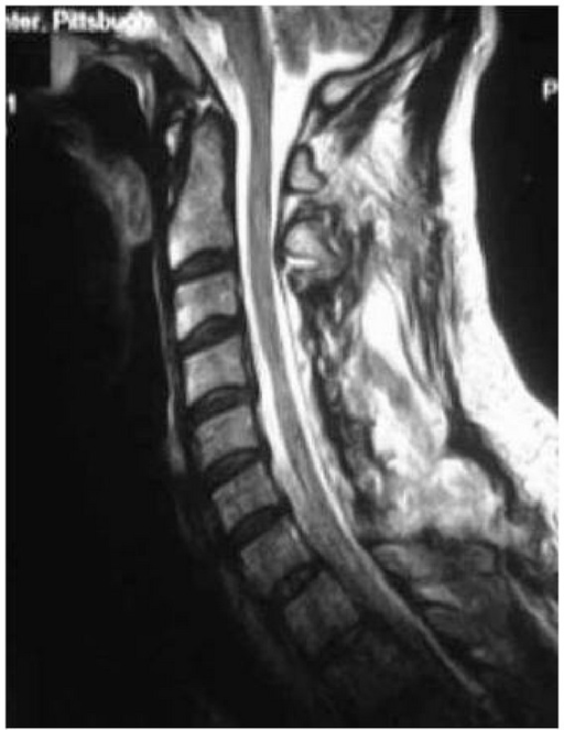 Post-laminoplasty MRI showing the space available for the cord created by the posterior decompression.