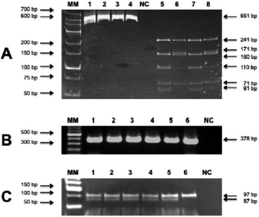 Products of PCR and PCR-RFLP for the detection of Hb St Luke's (A) and Hb Ottawa(B and C)A) Lanes 1 to 4 show amplicons derived from the exon 2 of theHBA1 gene (651 bp). Lanes 5 to 8 show the restriction productsfrom samples 1 to 4 with the endonuclease NlaIV. Lanes 5 and 6illustrate two samples with the mutation that encodes Hb St Luke's. The fragmentof 171 bp is not present in the wild geneB) Products of simple PCR of exon 1 of HBA1 gene (378 bp)C) Fragments of the samples shown in Figure B cleaved with the endonucleaseBsaJI. The mutation that encodes Hb Ottawa generates afragment of 87 bp shown in lanes 1 to 5, not present in lane 6 from a wild gene.To simplify the visualization of the result only the segment of the gel thatdistinguishes the two alleles is shown.12% polyacrylamide gel with ethidium bromide; MM: molecular marker; bp: basepairs; NC: blank control