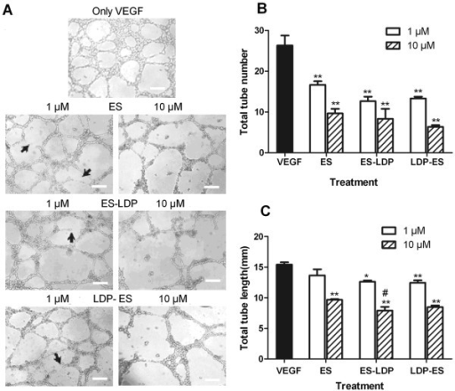 ES, ES-LDP or LDP-ES inhibited in vitro tubule formation. (A) ES or ES-based fusion proteins inhibited tubule formation of HMEC on Matrigel. Low (1 μM) and high (10 μM) concentrations were used. Bar, 200 μm. (B) Mean capillary tube number and (C) mean tube length was decreased by ES and ES-based fusion proteins after 12-h incubation. Three arbitral optical images were taken for each of the two independent experiments. Data are expressed as mean and standard deviation from six independent images, n = 6. *, P ≤ 0.05, **, P ≤ 0.001, compared with VEGF-control and #, P ≤ 0.05, compared with ES, in tube length and tube number, respectively. Cells were viewed with a microscope and pictures were taken at × 40.