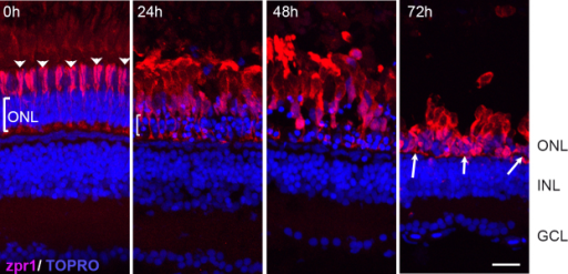 Effects of constant intense light exposure on cone cells of pigmented AB zebrafish. Retinas were collected from zebrafish before (0 h) and after the indicated length of light exposure. Retinas were processed for immunohistochemistry and stained with zpr1 antibody (red). Nuclei were counter-stained with TOPRO (blue). Dorsal retinas are shown. The arrowheads at 0 h indicate the ordered arrangement of the double cones; the bracket indicates ONL. White arrows show condensed zpr+ cells at 72 h of intense light. ONL, outer nuclear layer; INL, inner nuclear layer; GCL, ganglion cell layer. Scale bar is 50 µm.