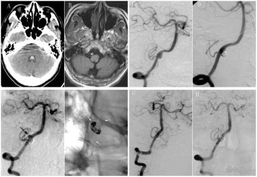 Retreatment with a second stent assisted coiling was performed for recurrent intracranial VADA after SAC.A 43-year old male presented with severe headache. CT scan showed subarachnoid hemorrhage and intraventricular hemorrhage (A). MR imaging showed intramural hematoma (B). Right vertebral angiograms of oblique view showed a dissecting aneurysm involving PICA (C). SAC were performed with near complete occlusion (D). Follow up angiography after eight months revealed regrowth of dissecting aneurysm on the opposite side and in a different location from the original dissecting aneurysm (black arrow) (E). Retreatment by SAC (white arrows) (F) was performed with complete occlusion (G). Follow up angiography after ten months of retreatment showed not only complete occlusion of dissecting aneurysm, but also patency of parent artery (H).