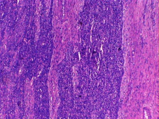 Endometrial stromal cells positive for CD-10 stain (internal control).