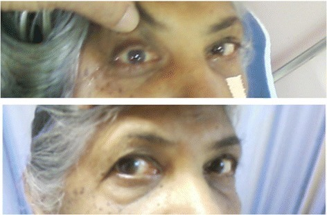 Examination of extraocular movements. Above: Right lateral rectus palsy prior to sphenoidotomy. Below: Full recovery of abduction in right eye 6 weeks following sphenoidotomy.