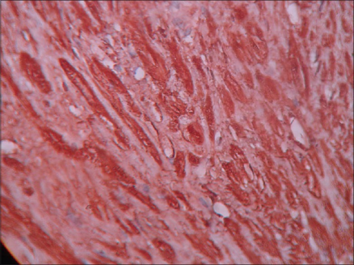 Immunohistochemistry showing positive staining for S-100