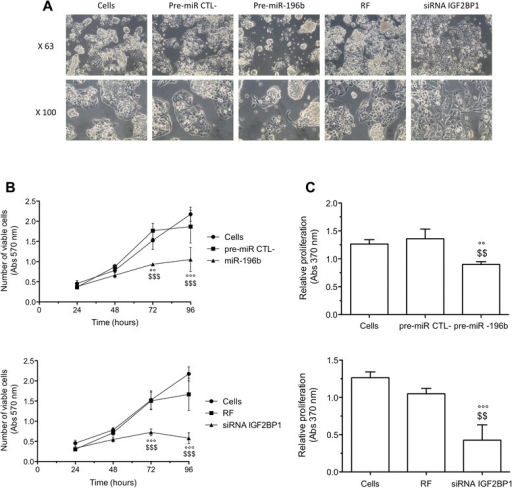Effects of miR-196b overexpression or IGF2BP1 silencing on cell morphology, viability and proliferation. HepG2 cells were transfected either with pre-miR negative control (pre-miR CTL-) or pre-miR-196b (50 nM) either with RISC Free negative control (RF) or IGF2BP1 siRNA (50 nM). (A) 72 h after transfection, the cell morphology was observed by phase contrast microscopy. (B) Cell viability assay (MTT assay) was performed 24, 48, 72 and 96 h after transfection of HepG2 cells (means ± 1 SD, n = 3). (C) Cell proliferation assay (BrdU ELISA assay) was performed 72 h after transfection (means ± 1 SD, n = 3). °°, °°°: significantly different from untransfected cells (Cells) (p < 0.01, p < 0.001), $$, $$$: significantly different from pre-miR negative control transfected cells or RF negative control transfected cells (p < 0.01, p < 0.001).