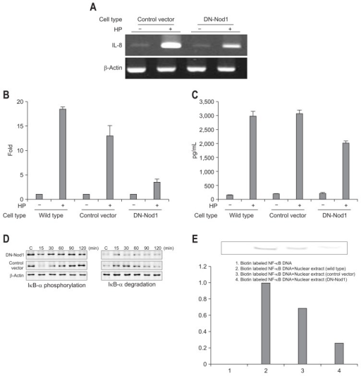 Interleukin (IL)-8 mRNA expression and IL-8 production in dominant-negative nucleotide binding oligomerization domain 1 (DN-Nod1) stably transfected AGS cells infected with HP99. (A) IL-8 mRNA expression in DN-Nod1 stably transfected AGS cells was reduced compared with that in the controls. (B) At 4 hours after infection, IL-8 mRNA expression in DN-Nod1 stably transfected AGS cells was reduced compared with the control vector-transfected cells, as determined by real-time reverse transcription-polymerase chain reaction (RT-PCR). (C) IL-8 secretion by the DN-Nod1 stably transfected AGS cells was reduced compared with the control vector-transfected cells. (D) IκB-α degradation and IκB-α phosphorylation were reduced in the DN-Nod1 stably transfected Caco-2 cells compared with the controls. (E) Nuclear factor κB (NF-κB) binding in the DN-Nod1 stably transfected Caco-2 cells was reduced compared with that in the controls. The error bars indicate the standard error of the mean of triplicate samples, which were representative of three independent experiments. Control vector, pcDNA3.