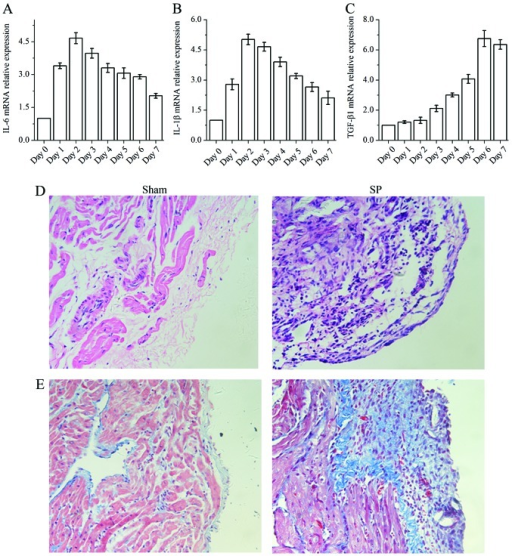 Assessment of inflammation and fibrosis in the sham-operated rats (Sham) and rats with sterile pericarditis (SP). (A–C) Relative mRNA level of atrial fibrillation (AF)-related pro-inflammatory cytokines: (A) interleukin (IL)-6, (B) IL-1β and (C) transforming growth factor-β1 (TGF-β1) in the atril samples during post-operative days 0–7. (D and E) Representative histological sections stained with (D) hematoxylin and eosin (H&E) and (E) Masson's trichrome at 4 days after surgery. Original magnification, x400. The rats with SP presented with a significant number of infiltrating inflammatory cells and extensice fibrosis.