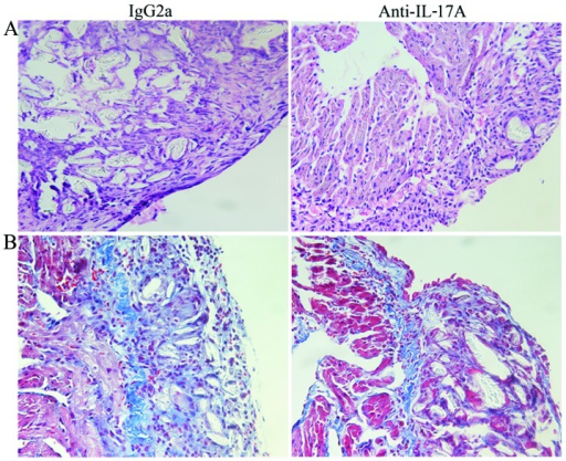 Effect of the neutralization of endogenous interleukin-17A (IL-17A) on inflammation and fibrosis in rats with sterile pericarditis (SP). Representative histological sections stained with (A) H&E and (B) Masson's trichrome at 4 days after surgery. Original magnification, x400. Treatment with anti-IL-17A mAb resulted in a significant decrease in the number of infiltrating inflammatory cells and fibrosis.