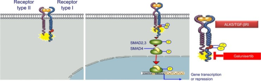 TGF-βRI (ALK5) and TGF-βRII canonical activation.Note: Galunisertib blocks the kinase of the ALK5 pathway reducing the pSMAD2 activation in cells.Abbreviations: ALK5, activin receptor-like kinase 5; pSMAD2, phosphorylation of SMAD2; TGF-β, transforming growth factor-beta.