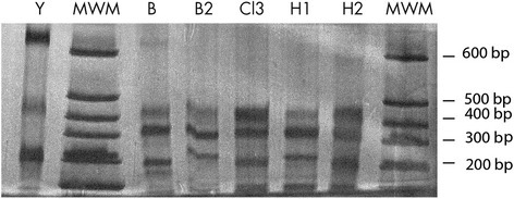"LSSP-PCR. DNA from parafinized heart explants and blood samples was amplified using the S35/S36 primer pair. The 330 bp product was gel-purified and analyzed by LSSP-PCR. Products were run in a 10 % polyacrilamide gel and silver-stained. H1 and H2 correspond to DNA extracted from two different sections of parafinized heart explant tissue B and B2 correspond to blood samples taken 10 days apart, starting six weeks after transplant. Cl3 corresponds to DNA from one of the clones derived from the original T. cruziisolate. Y indicates ""Y strain"" parasites (TcII DTU) used for comparison. MWM = molecular weight markers"