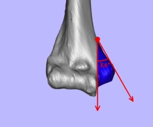 Extrusion angle of the medial epicondyle. The extrusion angle of the medial epicondyle was defined as the angle formed by the vertical line extending superiorly from the intersection of the medial aspect of the trochlea and the inferior aspect of the epicondyle at the distal humerus cortex along with a line originating from this point on the distal humerus extending to the most medial aspect of the medial epicondyle.