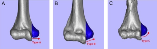 Inferior morphology of the medial epicondyle. Three morphology types were defined with respect to the inferior aspect of the medial epicondyle: (A) type A, or mostly flat; (B) type B, or gently sloping; and (C) type C, or sharply sloping.