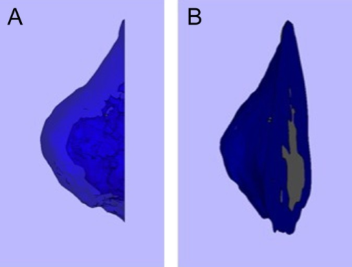 Cortical fraction of the medial epicondyle. (A) A 3-dimensional model was created that only included cortical bone. (B) The cortical fraction was defined as the volume of this cortical model divided by the volume of the total medial epicondyle.