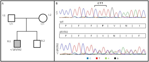 De novo heterozygous CACNA1A deletion in congenital ataxia with cerebellar atrophy.(A) Pedigree of the affected individual carrying the de novo heterozygous ΔF1502 mutation. White symbols denote healthy individuals and grey, congenital ataxia. (B) Electropherograms showing the deleted nucleotides (bracket) (NM_001127221.1-transcript variant 3:c.4503-4505delCTT) leading to a F1052 deletion (NP_001120693.1). Note the double wild-type (WT) and mutant (ΔF1502) sequence in the patient's electropherogram (heterozygous mutation carrier).